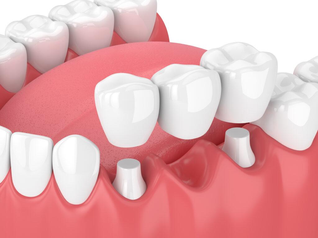 Dental Bridge Houston Reconstructive Dentistry