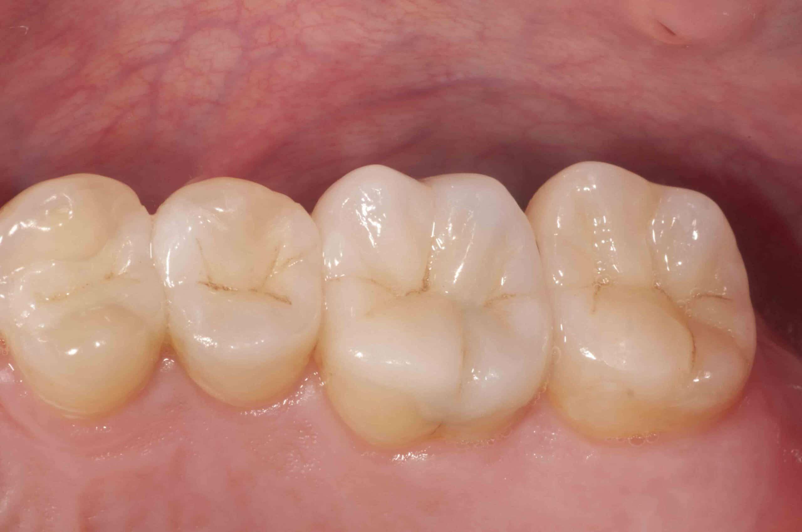 Fillings Houston Reconstructive Dentistry