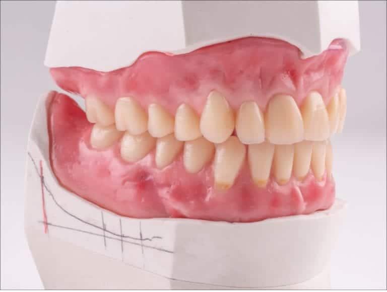 Dentures Houston Reconstructive Dentistry
